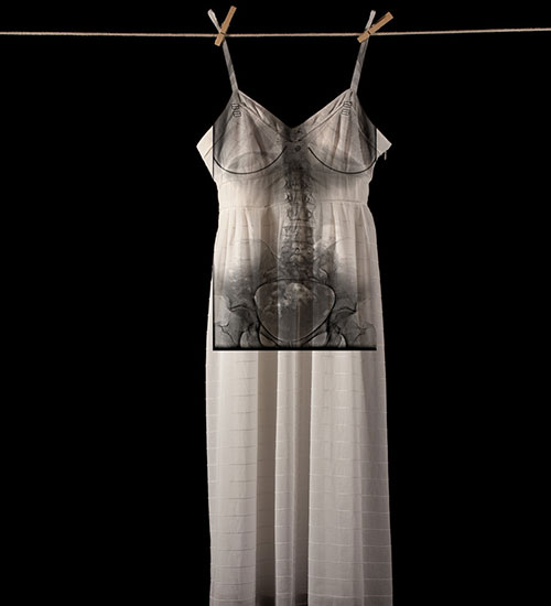 White dress hanging on a clothes line. Underneath, there is an x-ray of a torso.